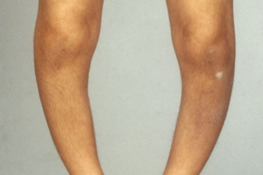 Painful deformities of the skeleton such as bowed legs: The return of rickets is another sign that the Conservative-led government is regressing Britain to conditions during the primitive Victorian era - or even earlier.